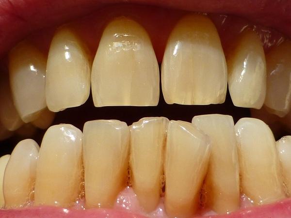 Khi sử dụng kháng sinh Tetracycline, các hoạt chất của nó sẽ ngấm vào mô răng (canxi) mới hình thành. Từ đó khiến răng bị nhiễm màu ngà. Nếu người mẹ đang mang thai uống thuốc này thì thai nhi có thể có hàm răng ngả vàng bẩm sinh. Tương tự trẻ em dưới 8 tuổi khi uống kháng sinh này cũng sẽ gặp tình trạng đó. Sự nhiễm màu răng từ Tetracycline có thể chia ra nhiều mức độ khác nhau. Bao gồm: vàng, nâu, xám, tím.