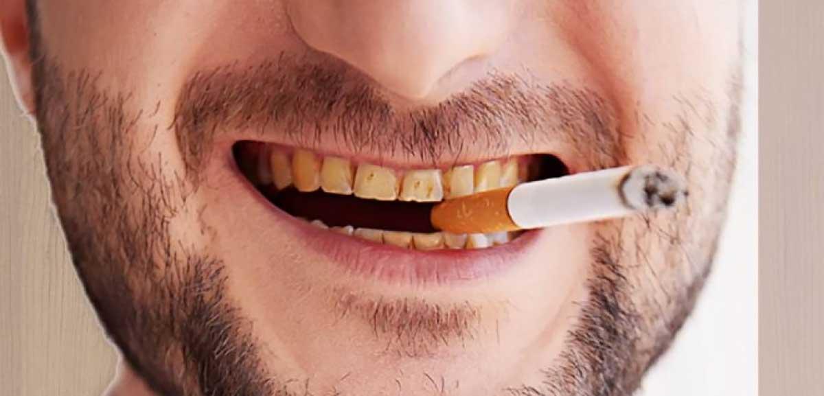 RĂng bị ố vàng do thói quen sinh hoạt xấu là một trong những nguyên nhân gây ố răng phổ biến. Có thể kể đến như: uống nước có màu, hút thuốc, vệ sinh răng miệng kém