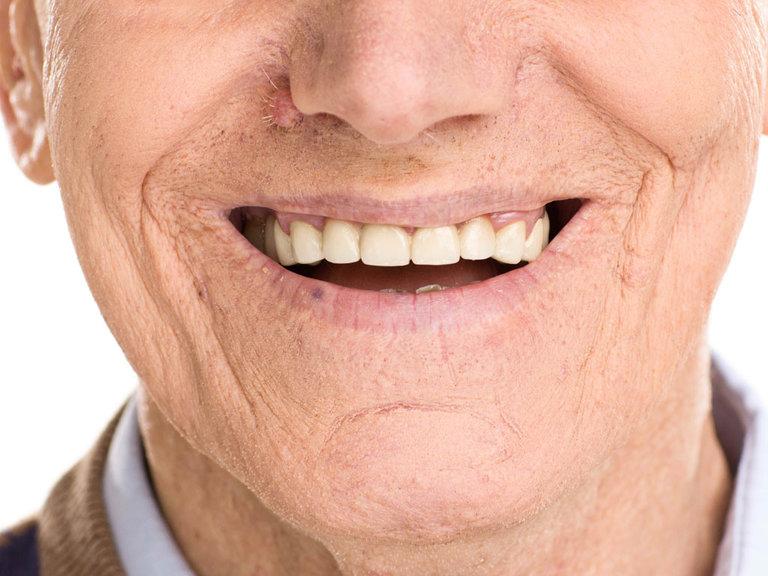 Về cơ bản, lớp bọc ngoài men răng sẽ bị mòn dần theo thời gian. Vì thế men răng tiếp xúc nhiều hơn với các loại thực phẩm hay đồ uống có màu. Từ đó bị nhiễm màu khiến màu răng vàng ố.