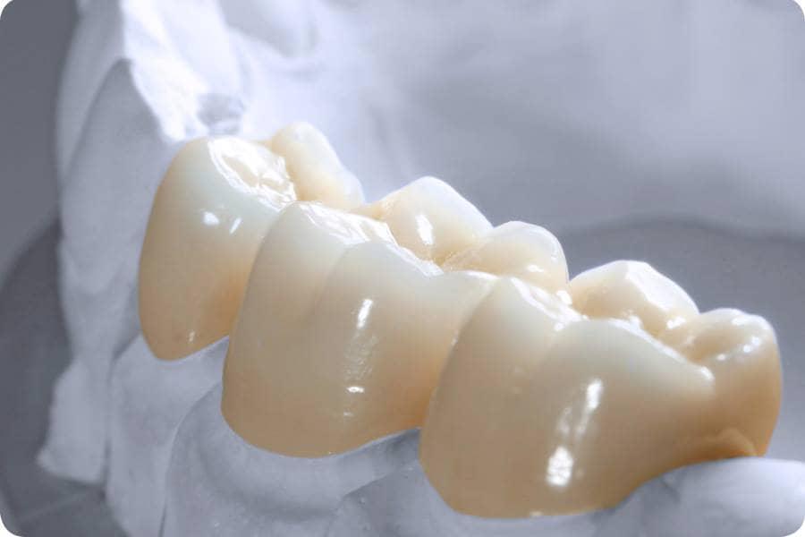 răng sứ từ vật liệu Zirconia phổ biến nhất trên thị trường hiện nay. Đây là sản phẩm này có nguồn gốc xuất xứ từ nước Đức. Loại răng sứ này được đúc nguyên khối theo phương pháp CAD/CAM, được nung ở nhiệt độ lên tới 1300 độ C trong vòng 10 giờ liên tiếp để đạt được độ cứng lên tới 800 MPa.