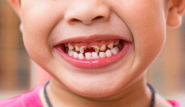 Sâu răng sẽ khiến trẻ đau nhức, quấy khóc, khó ăn uống. Hệ luỵ của việc này sẽ khiến trẻ suy dinh dưỡng, chậm phát triển. Sâu răng ở trẻ em nếu không được chữa trị kịp thời sẽ gây ra tình trạng thối tủy ở răng sữa. Trong trường hợp xấu nhất, nha sĩ sẽ buộc phải loại bỏ răng sâu. Với răng sữa ở trẻ em, nếu răng bị loại bỏ quá sớm trước thời kỳ thay răng. Răng vĩnh viễn sẽ bị ảnh hưởng: chậm mọc hoặc mọc lệch. Điều này sẽ ảnh hưởng rất nhiều đến hàm răng vĩnh viễn của trẻ sau này.