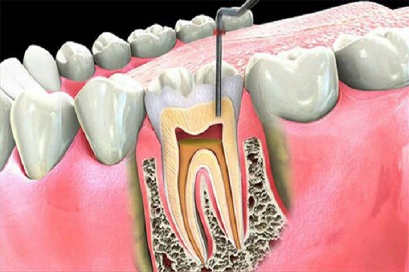 Trong các trường hợp điều trị răng sâu tận gốc, các nha sĩ sẽ không chỉ định việc trích tủy nếu không thực sự cần thiết. Tuy nhiên, nếu vi khuẩn đã ăn sâu vào tủy gây viêm nhiễm. Các nha sĩ sẽ buộc phải trích tủy để đảm bảo sự an toàn cho chân răng, xương hàm và nướu. Khi trích tủy răng sẽ không còn chắc khỏe như khi có tủy. Thường sau khi trích tủy răng sẽ chỉ có tuổi thọ từ 15-20 năm. Răng càng về sau sẽ càng goàn và dễ gãy vỡ.