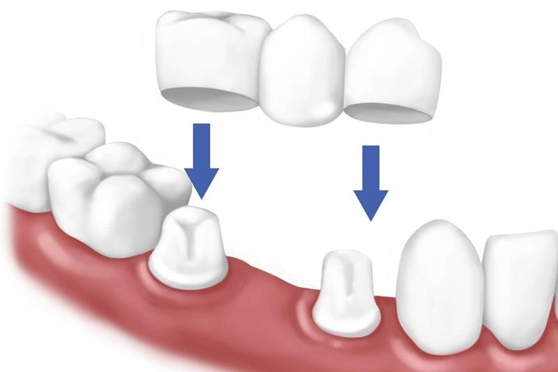 Làm cầu răng sứ - 7 thắc mắc thường gặp nhất khi | Nha Khoa Tân Định