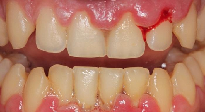 Một số bác sĩ không có kinh nghiệm lấy cao răng cũng sẽ khiến khách hàng cảm thấy ê buốt, chảy máu nướu. Tham lấy cao răng giá rẻ sẽ khiến bạn phải đối mặt với rủi ro chảy máu chân răng Chính vì thế, mà một cơ sở lấy cao răng rẻ chưa chắc sẽ đảm bảo an toàn cho người sử dụng. Bạn nên có những lựa chọn sáng suốt để tránh trường hợp tiền mất tật mang.