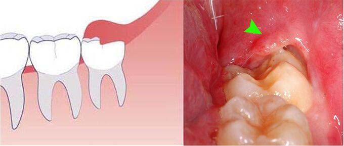 Lợi trùm là phần lợi bao phủ trên bề mặt răng. Lợi trùm có thể phủ kín hoặc phủ một phần răng. Theo bình thường, khi răng mọc phần lợi này sẽ dần tiêu biến. Tuy nhiên, một số trường hợp phần lợi trùm này sẽ che phù và cản trở sự phát triển của răng.Từ đó, chúng gây đau đớn cho bệnh nhân.