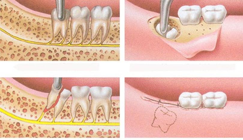 Loại bỏ răng không được biết đến là phương pháp hữu hiệu nhất giúp giải quyết tình trạng lợi trùm bị viêm. Nhổ răng khôn sẽ đảm bảo tình trạng viêm lợi không quay lại nữa. Không chỉ điều trị dứt điểm viêm lợi. Việc loại bỏ bớt răng khôn sẽ giúp phần hàm có thêm khoảng trống. Nhờ đó, giúp bạn vệ sinh răng miệng một cách dễ dàng hơn. Vì vậy, nhổ răng khôn chính là phương pháp được các nha sĩ khuyến khích trong việc điều trị lợi trùm bị viêm.