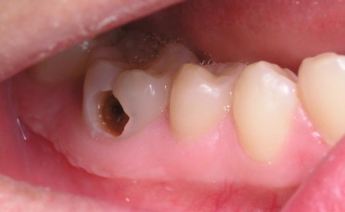 Trong bộ răng thì răng hàm là răng cứng nhất và nằm sâu bên trong khoang miệng. Vì vậy phụ huynh thường chủ quan lơ là không kiểm tra khi trẻ có biểu hiện sâu răng ở răng hàm. Thực tế, vì nằm sâu bên trong, việc phát hiện sâu răng hàm là không hề dễ dàng. Phải dùng đến các dụng cụ nha khoa chuyên dụng để xem xét thì mới có thể phát hiện sâu răng ở trẻ em. Có quan niệm cho rằng khi vẫn là răng sữa thì thế nào cũng được vì đằng nào cũng sẽ được thay bằng răng vĩnh viễn. Tuy nhiên đây là quan niệm sai lầm vì răng sữa cũng có thể gây ảnh hưởng đến quá trình mọc răng trưởng thành.