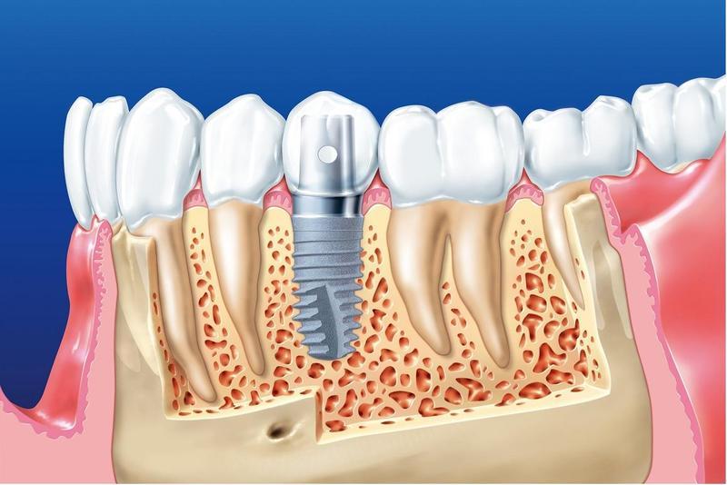 Phương pháp cấy ghép răng implant là phương pháp phục hình răng khá phổ biến ở nhiều nước phát triển. Thời gian gần đây nó ngày càng được sử dụng phổ biến tại Việt Nam. Đây cũng là giải pháp tốt nhất cho những người mất răng hay bị tiêu xương hàm và khó khắc phục bằng những phương pháp truyền thống. Nhiều người vẫn còn lo lắng và chưa hiểu rõ về phương pháp phục hình răng này. Bài chia sẻ hôm nay sẽ cho bạn đọc một cái nhìn tổng quan và khá chi tiết về việc cấy ghép Implant.