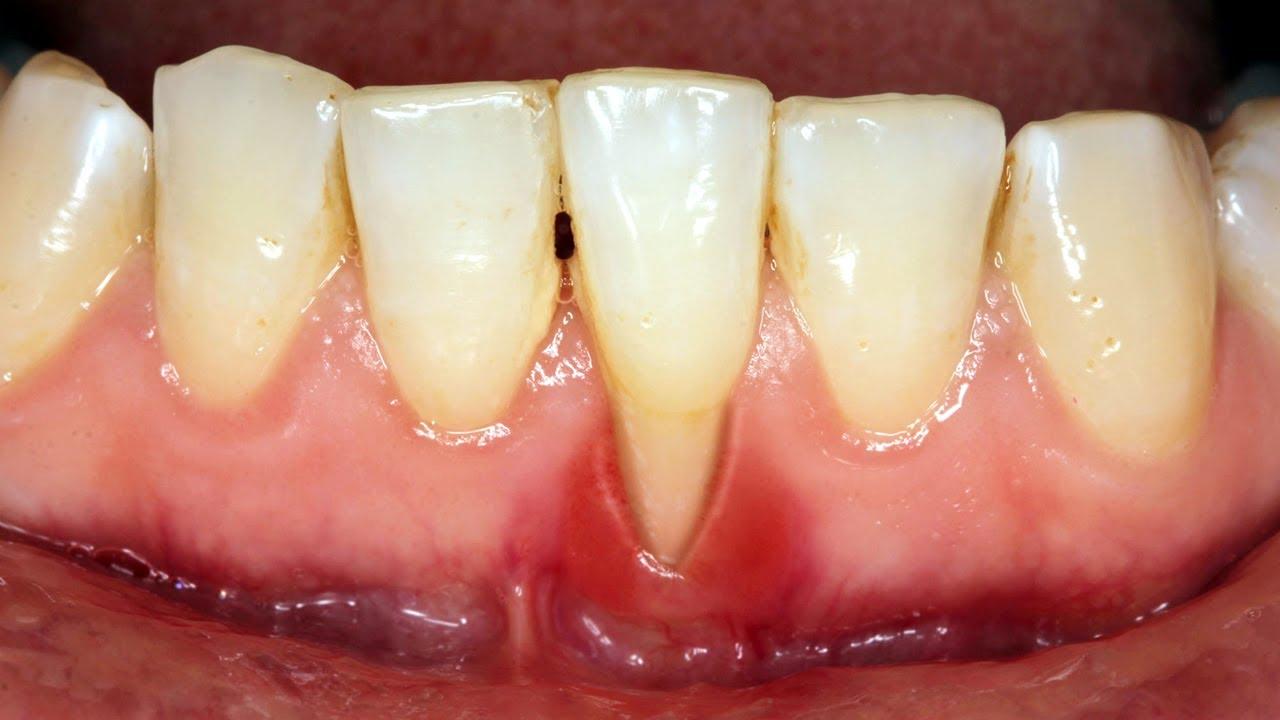 So với tụt nướu hàm trên, tụt nướu hàm dưới khó phát hiện hơn. Do phần mặt trong môi dưới bao phủ phần răng và nướu. Tuy nhiên, với tình trạng tụt nướu dưới, nếu không được phát hiện kịp thời sẽ gây những ảnh hưởng không tốt cho răng.