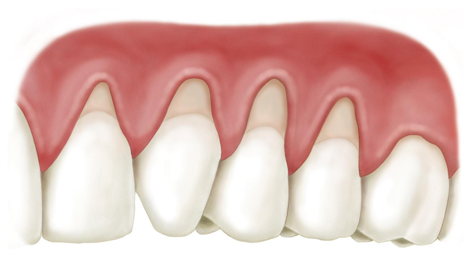 Theo thời gian, nướu răng bị tụt dần để lộ lớp ngà chân răng. Lúc này acid trọng nước bọt và thực phẩm làm men chân răng mỏng dần đi. Từ đó hệ thống dây thần kinh bên trong nhạy cảm và dễ bị kích thích làm ê buốt.