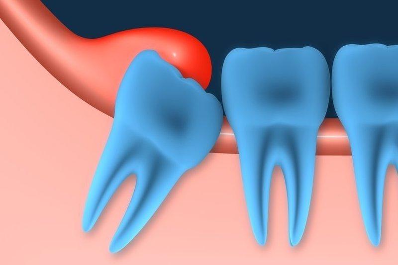 Viêm lợi trùm là một dạng bệnh lý về răng thường gặp có liên quan tới quá trình phát triển của răng khôn. Trong một số trường hợp, lợi trùm có thể gây viêm sưng và đau đớn cho những người gặp phải. Trong bài viết kỳ này, Nha Khoa Tân Định sẽ đi vào giới thiệu chi tiết cho bạn về lợi trùm và phương pháp điều trị lợi trùm bị viêm dứt điểm nhé!