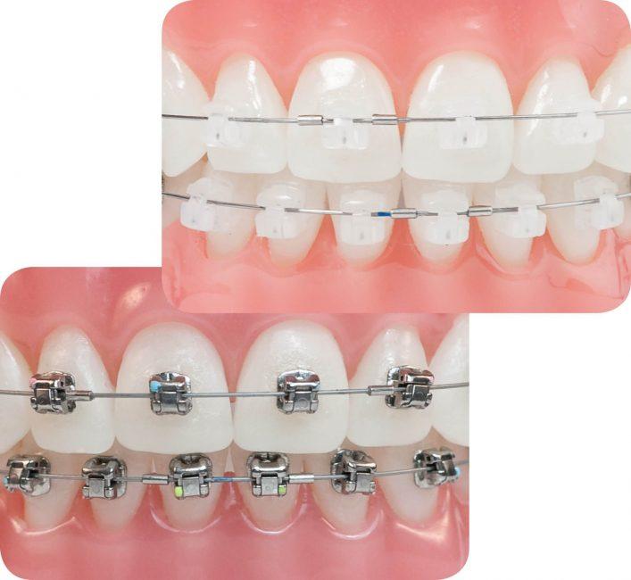 Niềng răng mắc cài tự buộc là phương pháp sử dụng mắc cài và dây cung để tạo lực dịch chuyển cho răng. Nhưng đây là phương pháp chỉnh nha mà không cần thun mắc cài. Thay vào đó, hệ thống nắp trượt tự động sẽ giúp dây cung có thể tự do trượt trong rãnh mắc cài. Nhờ vậy, lực dịch chuyển răng sẽ được tác động liên tục lên răng. Nhờ vậy mà quá trình điều trị được diễn ra nhanh chóng và thuận lợi hơn.