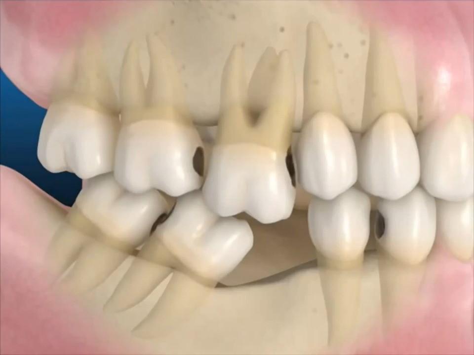 Hậu quả của mất răng lâu năm Các răng xung quanh sẽ bị nghiêng về phía khoảng trống, khiến hàm răng trở nên lộn xộn. Các răng xung quanh răng còn yếu dần và mất đi. Từ đó, bệnh nhân dễ mắc các bệnh như: sâu răng, viêm nướu, hư tủy răng,... Người bị mất răng sẽ thường bị đau nhức răng, đau đầu, dễ chảy máu dưới tác động như đánh răng, xỉa răng,... Tác động đến chức năng nhai cắn: thức ăn không được nghiền kỹ, hệ tiêu hóa phải làm việc nhiều hơn dẫn tới tình trạng đau dạ dày.