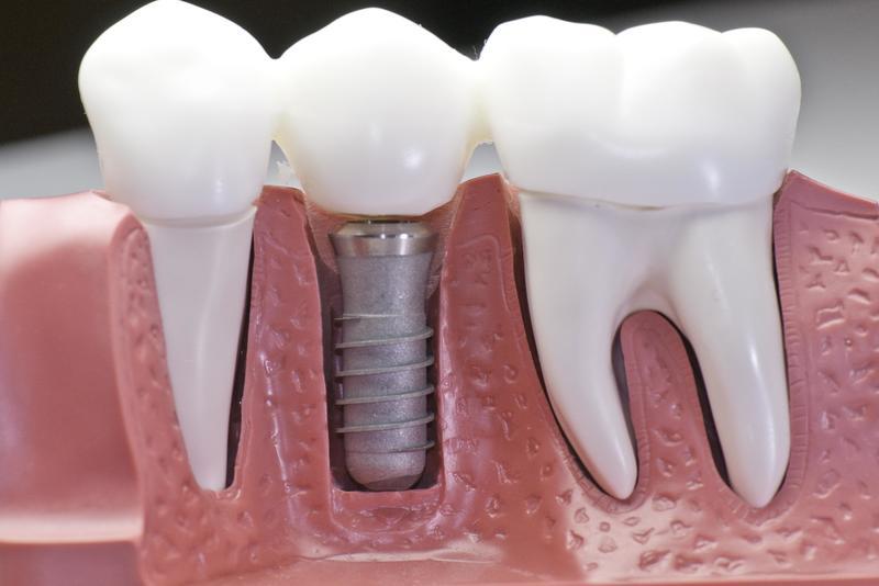 Làm răng implant là giải pháp mang lại hiệu quả cao cho trường hợp bị mất răng, đặc biệt là các bệnh nhân bị tiêu xương hàm, xương hàm mỏng,...Cấy ghép Implant đã khá phổ biến hiện nay. Hãy cùng tìm hiểu thật kỹ về phương pháp này nhé!