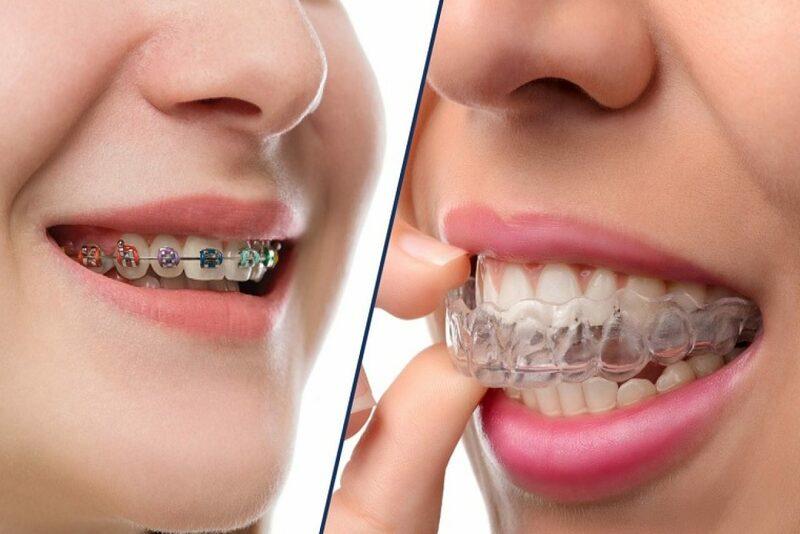 """Niềng răng là một phương pháp chỉnh nha vật lý giúp đưa các răng về đúng vị trí mọc. Từ đó, mang tới cho bạn một hàm răng đều và đẹp. Hiện nay, có rất nhiều phương pháp niềng răng phù hợp với từng tình trạng răng cũng như mức phí chi trả của người sử dụng. Trong bài viết kỳ này, hãy cùng Nha Khoa Tân Định đi vào tìm hiểu: """"Niềng răng mắc cài và niềng răng trong suốt, bạn nên chọn phương pháp nào?"""" nhé!"""