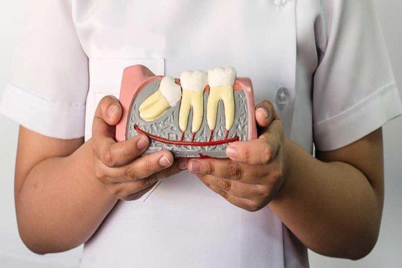 Răng khôn hay còn gọi là răng 8 là một trong những loại răng khiến mọi người đều cảm thấy rất đau đầu và khó chịu. Bởi vì răng khôn không chỉ gây đau nhức cho người gặp phải. Mà còn gây ra sự bất tiện trong cuộc sống hàng ngày. Tuy nhiên khi bạn mọc răng khôn thì nhổ răng khôn ở đâu cho thật sự uy tín và việc chăm sóc răng sau đó như thế nào là những vấn đề mà hầu hết đều quan tâm.