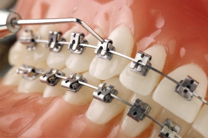 Chi phí của loại niềng răng mắc cài này sẽ cao hơn so với các loại thông thường. Độ dày của mắc cài khá lớn và có thể gây khó chịu cho người sử dụng. Với cấu tạo phức tạp cùng độ dày lớn hơn so với các loại mắc cài khác. Cho nên khi đeo bệnh nhân sẽ cảm thấy khó chịu một chút. Đòi hỏi đội ngũ bác sĩ phải có tay nghề cao thì mới có thể thực hiện một cách đảm bảo an toàn cho người niềng răng.