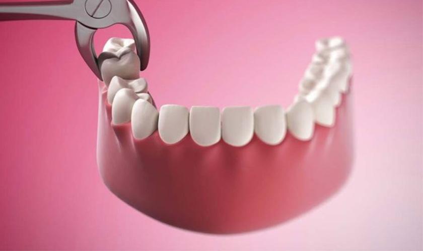 Những trường hợp nên cân nhắc trước khi nhổ răng khôn Răng khôn mọc thẳng mọc bình thường và không bị kẹt vào mô xương và nướu và không gây biến chứng. Trường hợp này có thể giữ răng khôn lại và bạn cần dùng chỉ nha khoa và bàn chải chuyên dụng để làm sạch răng một cách triệt để. Bệnh nhân mắc các bệnh lý mãn tính có thể kể đến như tim mạch hay đái tháo đường… Răng khôn liên quan trực tiếp đến một số cấu trúc quan trọng trong cơ thể. Như xoang hàm hoặc dây thần kinh...