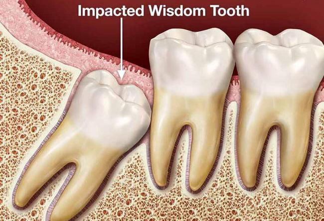Những trường hợp bắt buộc phải loại bỏ răng khôn Răng khôn mọc không thẳng, thiếu chỗ Răng khôn gây cản trở và hình dạng bất thường, dị dạng. Răng khôn có bệnh liên quan đến nha chu hoặc sâu răng