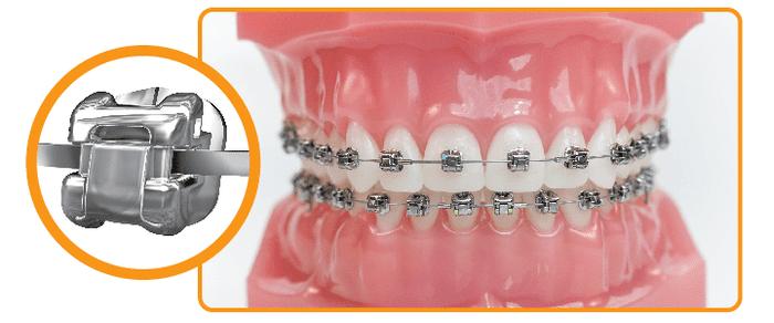 Ưu điểm của niềng răng mắc cài tự buộc Sử dụng niềng răng này sẽ giúp bạn giảm thiểu thời gian đeo niềng răng Dây mắc cài cũng ít bị biến dạng. Và mắc cài không bị tuột nhờ vào dây trượt tự do có trong mắc cài. Giảm thiểu lực ma sát để từ đó có thể giảm thiểu tình trạng đau nhức ở nướu Sử dụng niềng răng này bạn cũng không cần gặp bác sĩ thường xuyên để điều chỉnh dây cung.