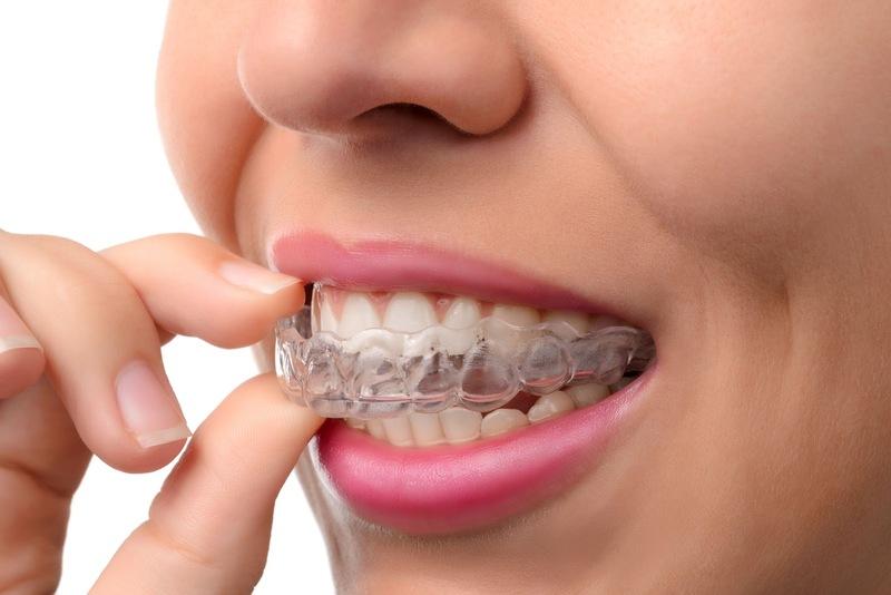 Phương pháp phổ biến nhất giúp điều trị răng hô là gì? Niềng răng hô là một trong những phương pháp điều trị răng hô phổ biến nhất hiện nay. Đây là phương pháp vật lý sử dụng các mắc cài và dây cung được gắn trên răng. Những mắc cài và dây cung này sẽ được điều chỉnh để căng kéo và đưa răng về đúng vị trí mọc. Với phương pháp niềng răng bạn sẽ mất từ 2-3 năm để răng có thể về đúng vị trí.
