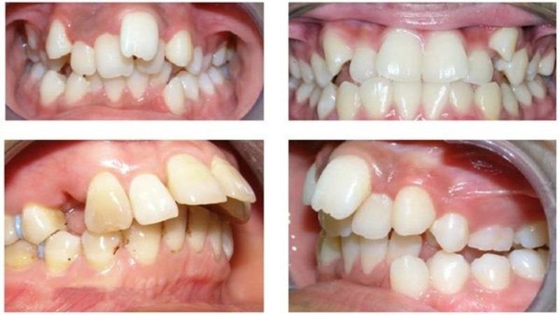Những ảnh hưởng của răng hô tới sức khỏe Ảnh hưởng chức năng nhai: Răng hô gây sai lệch khớp cắn. Vì vậy, những người bị hô thường khó cắn khớp được hai hàm. Vì vậy, những người bị hô sẽ gặp rất nhiều khó khăn trong việc xe và nghiền nhỏ thức ăn. Khó vệ sinh: Khớp cắn bị sai lệch dẫn tới tình trạng các răng không mọc đều. Do đó, những khoảng trống giữa các răng là điều không tránh khỏi. Vì vậy, khi vệ sinh răng hô, bạn sẽ cần phải cẩn thận hơn rất nhiều. Gây trở ngại trong việc phát âm: Do phần hàm không khớp, dẫn tới việc những người bị hô gặp rất nhiều khó khăn trong việc phát âm tròn vành, rõ chữ. Mất tự tin, ngại giao tiếp là điều bạn dễ thấy ở những người gặp vấn đề về răng. Những người bị hô cũng không nằm ngoài ngoại lệ.