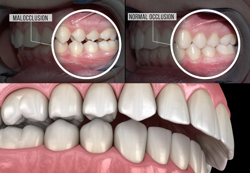 Những kiểu răng răng hô phổ biến Hô do răng: Đây là tình trạng các răng mọc trong hàm trên có xu hướng mọc hướng ra ngoài. Trong khi đó, nếu mọc chuẩn các răng phải mọc theo phương thẳng đứng. Điều này khiến răng bị chìa ra ngoài. Hô do xương hàm: Với trường hợp này, răng mọc bình thường theo phương thẳng đứng. Tuy nhiên, phần xương hàm trên lại phát triển quá mức. Điều này dẫn tới phần hàm trên bị nhô ra quá nhiều so với hàm dưới và gây hô/ Hô do cả răng và xương hàm: Răng hô do cả răng và xương hàm. Đây là trường hợp hô nặng. Nguyên nhân gây ra tình trạng này là do phần răng mọc lệch ra ngoài. Đồng thời phần hàm trên cũng bị phát triển quá mức. Dẫn tới phần hàm trên vừa mọc lệch vừa nhô ra rất nhiều so với hàm dưới.
