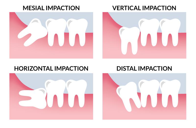 Những vị trí răng khôn thường mọc: Răng khôn mọc kẹt về phía gần: Đây là tình trạng hay gặp nhất, trục của răng nghiêng về phía răng số 7 khoảng 45 độ. Chiếc răng này vẫn mọc lên trên nướu nhưng chèn ép răng số 7 gây xô lệch. Răng khôn mọc kẹt theo chiều thẳng đứng: Thân răng quá to không thể nhú lên gây đau nhức dù răng mọc thẳng. Một vài trường hợp do kẽ răng không chuẩn khiến thức ăn đọng lại ở kẽ răng số 7 và 8 gây hôi miệng, viêm lợi, sâu răng. Răng mọc kẹt nghiêng về phía sau: Thường gặp ở hàm dưới, khi gặp trường hợp này, bác sĩ khuyến cáo nên nhổ sớm vì dễ gây nhiều biến chứng nghiêm trọng. Răng mọc kẹt trong niêm mạc miệng: Lợi trùm răng khôn: vạt nướu đè lên khiến răng khôn không thể mọc hẳn lên được. Tại vùng lợi này sẽ có tình trạng viêm nhiễm, sưng tấy. Răng mọc kẹt trong xương hàm: Hiểu đơn giản là răng khôn bị xương hàm bọc kín,rất khó phát hiện. Kèm theo các triệu chứng sưng lợi, đau đớn và cứng hàm.