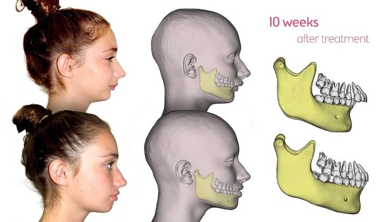 Trường hợp lệch hàm hô nặng do xương hàm, nếu không tác động vào xương hàm chúng ta sẽ không xử lý được tình trạng hô. Trong trường hợp này, các bác sĩ buộc phải thực hiện phẫu thuật chỉnh hình hàm. Với phương pháp này, các bác sĩ sẽ loại bỏ bớt phần xương hàm bị phát triển quá mức phía trên với sự hỗ trợ của các trang thiết bị máy móc trong y khoa. Phẫu thuật chỉnh hình hàm có độ phức tạp cao.