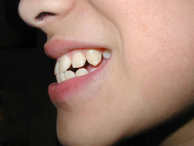 Răng hô được biết đến là một dạng bệnh lý có liên quan tới cấu trúc hàm. Răng hô mang đến cho người mắc phải rất nhiều rắc rối. Không chỉ làm ảnh hưởng tới chức răng nhai, răng hô còn khiến chúng ta mất tự tin trong giao tiếp thường nhật. Trong bài viết kỳ này, hãy cùng Nha Khoa Tân Định tìm hiểu: Răng hô là gì? Những phương pháp giúp xử lý triệt để tình trạng răng hô.