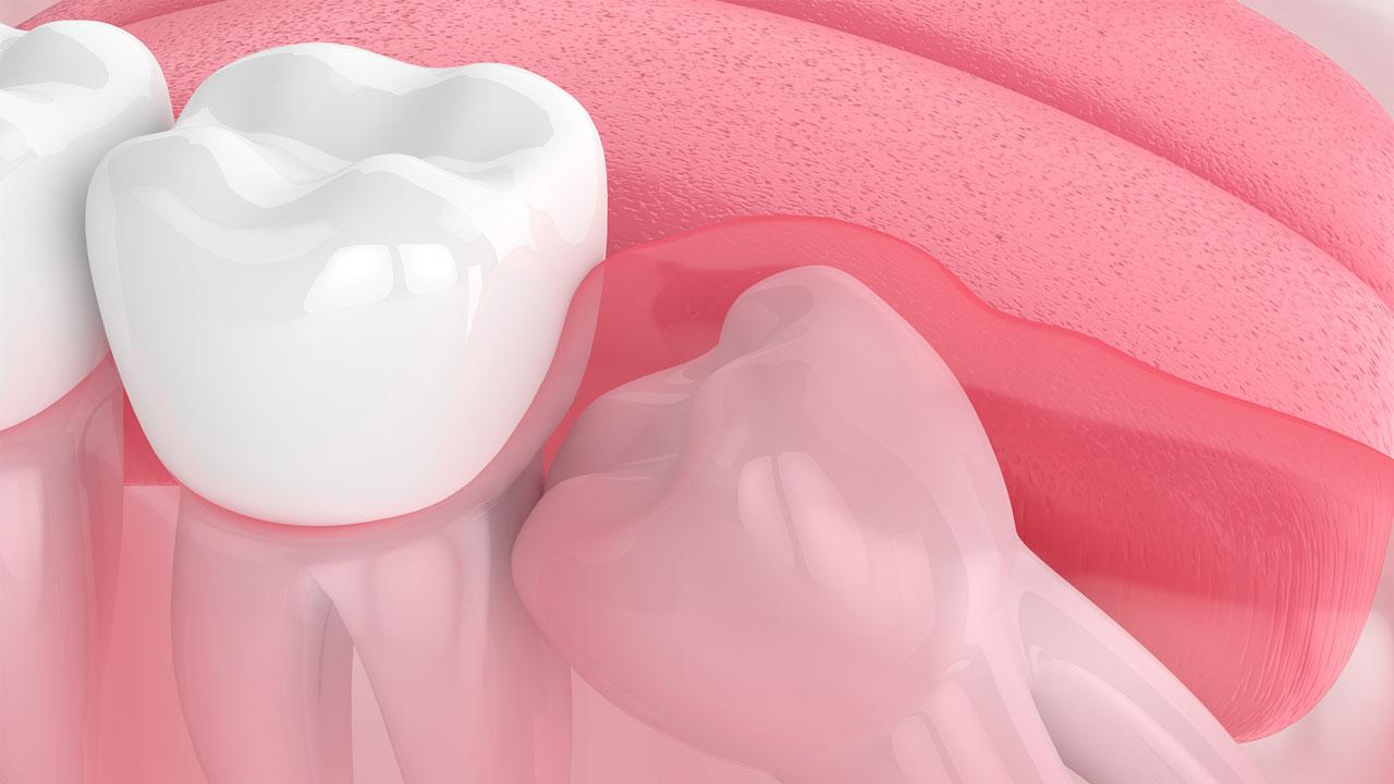 Chúng ta thường biết răng khôn sẽ mọc trong giai đoạn từ 16-18 tuổi. Nhưng thực chất đây là lúc bạn nhìn thấy răng khôn nhú lên khỏi lợi. Từ năm 10 tuổi, răng khôn đã bắt đầu hình thành trong góc xương hàm. Sau đó chúng sẽ tiếp tục mọc dần lên. Mỗi người lại có thời gian mọc răng khôn khác nhau. Có người chỉ mất vài tháng nhưng có người thời gian mọc răng khôn sẽ kéo dài hàng năm.
