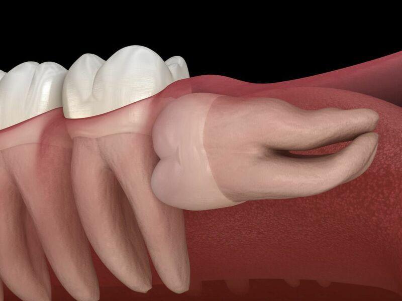 Răng khôn hay còn được biết đến với tên gọi là răng hàm số 8. Đây là những chiếc răng mọc cuối cùng vào giai đoạn trưởng thành, từ 17 tới 25 tuổi. Tuy nhiên có nhiều trường hợp chúng ta buộc phải nhổ bỏ răng khôn. Vì những biến chứng xấu để bảo vệ sức khỏe răng miệng của những chiếc răng kế đó. Vậy răng khôn mọc ngang là gì? Có nên nhổ răng khôn mọc ngang không? Hãy cùng chúng tôi tìm hiểu về phương pháp xử lý sao cho phù hợp nhất!