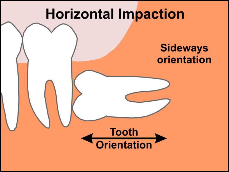 Răng mọc theo góc 90 độ với răng số 7. Trường hợp này răng sẽ ngầm dưới xương hàm, do đó phải chụp xquang phải thấy được. Nếu răng nhú thêm sẽ đâm vào răng bên cạnh. Dẫn đến u nang, thậm chí là hỏng chân răng số 7.