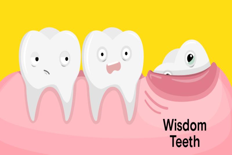 Một người trưởng thành bình thường sẽ có tất cả 32 chiếc răng. Trong đó 4 răng khôn sẽ là những chiếc răng mọc sau cùng. Vậy răng khôn mọc ở đâu? Tại sao răng khôn lại gây ra đau đớn trong quá trình mọc? Chúng ta có nên loại bỏ răng khôn hay không? Hãy cùng Nha Khoa Tân Định giải đáp những thắc mắc liên quan tới câu hỏi: Răng khôn mọc ở đâu trong bài viết kỳ này nhé!