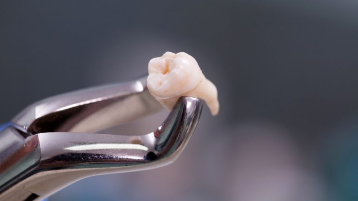 Răng khôn phía hàm trên sẽ có 3 chân. Trong khi đó răng khôn hàm dưới chỉ có 2 chân. Vì vậy, khi thực hiện nhổ răng khôn bạn nên lưu ý kiểm tra lại số lượng mảnh răng cắt được lấy ra. Điều này giúp bạn tránh được rủi ro lấy thiếu chân răng ở một số địa chỉ nha khoa thiếu chuyên nghiệp.