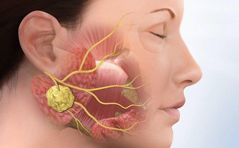 Nếu không được xử lý kịp thời răng khôn mọc ngang hay mọc lệch sẽ gây ra u nang xương hàm. Gây hỏng xương hàm, răng và cả dây thần kinh. Nếu quá nặng bác sĩ sẽ loại bỏ mô và xương, gây ảnh hưởng lớn tới sức khỏe răng miệng.