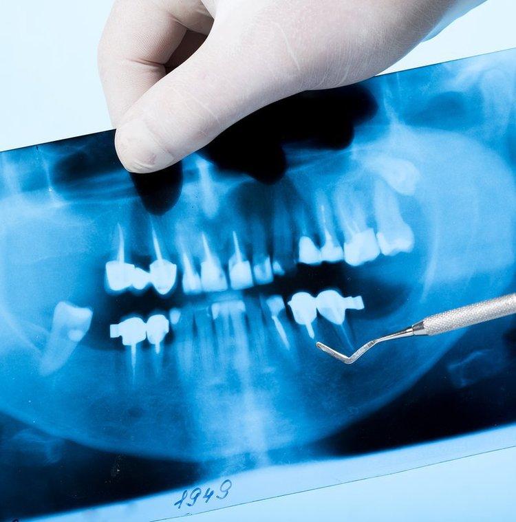 Khi gặp tình trạng đau đớn kéo dài sau khi nhổ răng, bạn nên tới gặp bác sĩ để được kiểm tra. Tại đây, các bác sĩ sẽ tiến hành khai thác thêm từ bệnh nhân những thông tin liên quan. Đồng thời kiểm tra vị trí hốc răng. Trong một số trường hợp, các bác sĩ sẽ yêu cầu bệnh nhân thực hiện chụp X-quang miệng và răng. Điều này sẽ giúp các bác sĩ loại trừ việc bệnh nhân có thể gặp phải các dạng bệnh lý khác như: nhiễm trùng tủy xương hoặc chân răng còn sót lại. Với kết quả X-quang, việc đưa ra phác đồ điều trị của bác sĩ sẽ chính xác hơn cả.