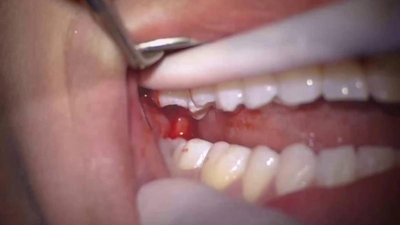 Nhổ răng khôn được bắt đầu với bước rạch nướu vừa đủ để lấy toàn bộ chân răng. Tùy theo vị trí mọc của chiếc răng mà bác sĩ sẽ có những điều chỉnh thích hợp ở bước này. Khi răng đã được nhổ, dùng chỉ khâu nha khoa để khâu lại vết rạch nướu. Chỉ này sẽ tự tiêu sau một thời gian sử dụng. Sau khi nhổ răng cần có chế độ ăn uống hợp lý và nghiêm túc tuân theo toa thuốc cũng như chỉ dẫn khác của bác sĩ. Vùng nướu bị sưng sẽ giảm và tình trạng răng miệng cũng nhanh chóng trở lại bình thường.
