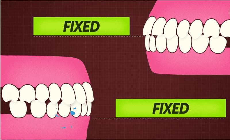 Quá trình niềng răng hô sẽ giúp đưa răng về đúng vị trí mọc. Từ đó, vị trí răng hàm trên và hàm dưới sẽ khớp với nhau hơn. Nhờ vậy, chức năng nhai của răng sẽ được cải thiện hơn, giúp hỗ trợ quá trình tiêu hóa về sau.