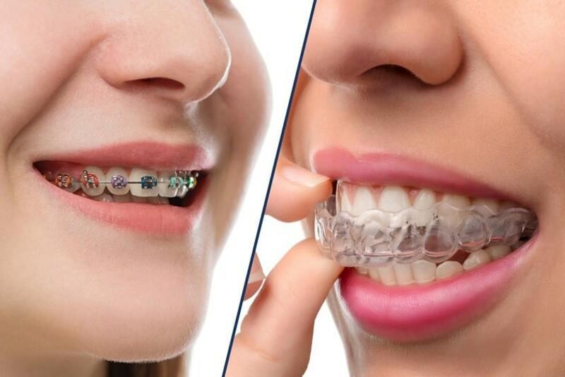 """Tình trạng răng hô đã và đang là vấn đề đau đầu của rất nhiều người. Nó tác động rất lớn đến cuộc sống cũng như công việc và tinh thần. Bạn mất tự tin, ngại giao tiếp do răng hô? Một trong những giải pháp được lựa chọn nhiều nhất chính là niềng răng. Tuy nhiên, bạn lại lo ngại vì phải đeo mắc cài quá lâu, không biết khi nào mới có kết quả. Hãy để chúng tôi giải đáp cho bạn """"Niềng răng hô mất bao lâu?"""" và quá trình niềng răng diễn ra như thế nào nhé!"""
