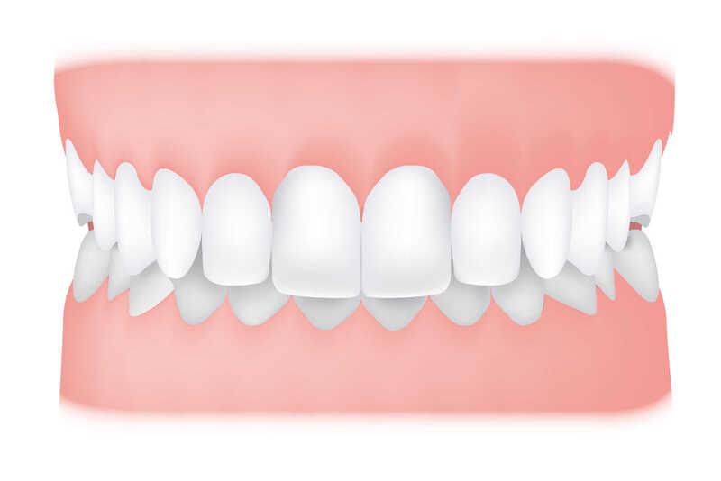Răng hô nhẹ là một trong những dạng bệnh lý về sai lệch khớp cắn phổ biến nhất ở Việt Nam. Vậy đâu là giải pháp điều trị cho tình trạng này? Trong bài viết kỳ này, hãy cùng Nha Khoa Tân Định tìm hiểu về 3 phương pháp xử lý tình trạng răng hô nhẹ phổ biến nhất hiện nay nhé!