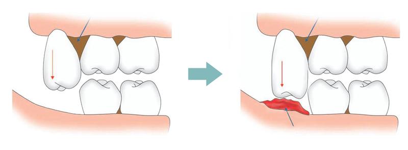Ở độ tuổi trưởng thành (18-25 tuổi), cấu trúc xương hàm đã phát triển ổn định. Răng khôn mọc vào độ tuổi này khiến hàm không có cơ chế thích nghi phù hợp. Dẫn đến tình trạng sưng, đau nhức. Nếu cơn đau chỉ kéo dài một thời gian và biến mất thì không vấn đề gì. Tuy nhiên, ở nhiều trường hợp, răng khôn mọc lệch trong cung hàm. Từ đó, gây ra tổn thương nghiêm trọng vùng nướu xung quanh và cơn đau khó dứt.