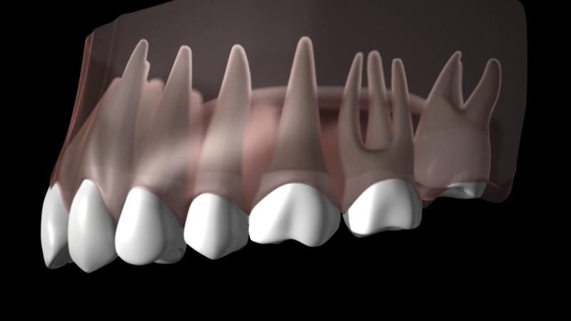 Răng khôn hàm trên là răng mọc ở trong cùng nằm ở cung hàm trên. Hay còn được gọi là răng số 8 hàm trên. Các cơn đau gây ra bởi loại răng khôn va việc nhổ răng chính là nỗi băn khoăn của nhiều người.
