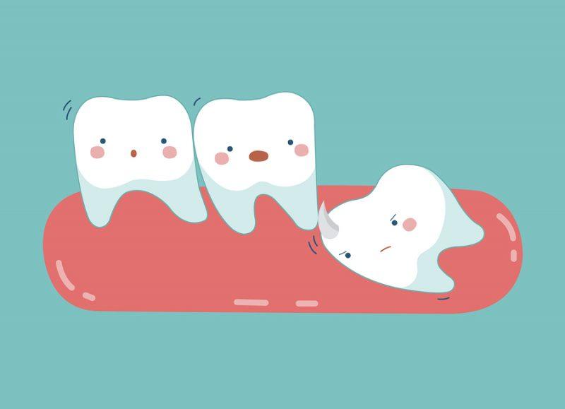 răng khôn mọc khi nào