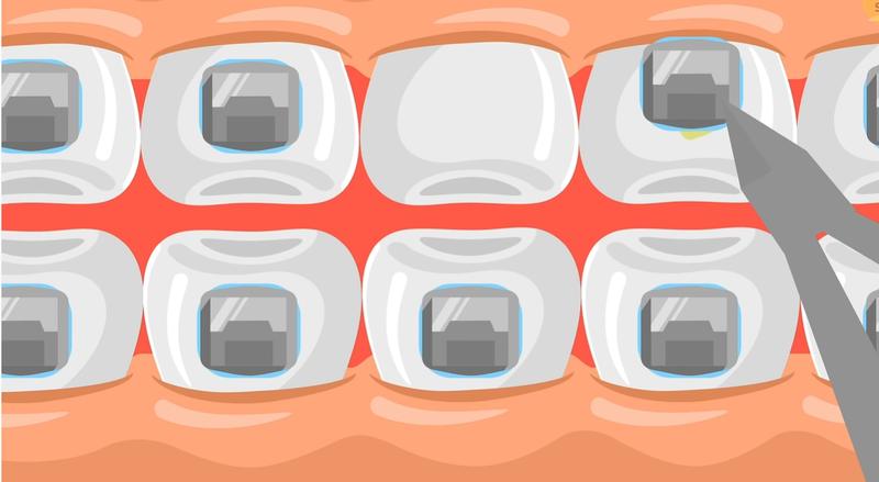 Sau một quá trình niềng răng dài (khoảng 18-24 tháng) thì hàm răng của bạn đã được điều chỉnh một cách tự nhiên. Lúc đó, bạn sẽ được tháo mắc cài. Ngoài ra, bạn cũng cần phải chăm sóc sau khi tháo mắc cài để cho hàm răng khỏe mạnh hoàn chỉnh. Sau đó, bạn có thể tự tin với hàm răng mới, khỏe hơn, cười tươi hơn và xinh đẹp hơn.