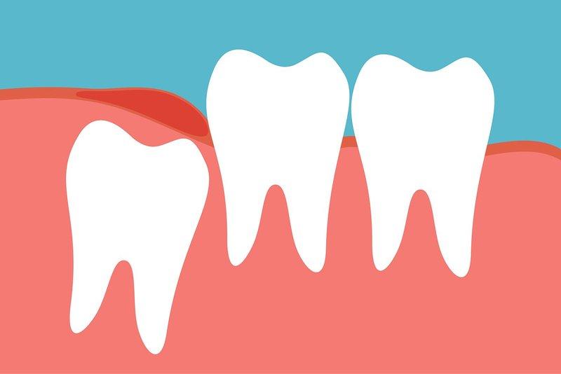 Trường hợp nào không cần thiết phải loại bỏ răng khôn? Răng khôn mọc thẳng bình thường và không gây ảnh hưởng và biến chứng. Nó cũng không bị kẹt bởi mô xương và nướu. Bệnh nhân có các bệnh lý toàn thân không thể kiểm soát tốt như vấn đề tiểu đường, tim mạch hay rối loạn đông cầm máu… Răng khôn có liên quan trực tiếp đến cấu trúc giải phẫu quan trọng như dây thần kinh hay xoang hàm… mà không thể thực hiện các phương pháp phẫu thuật một cách chuyên biệt.
