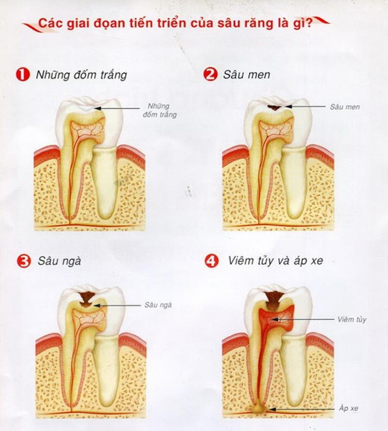 Các giai đoạn phát triển của sâu răng: Giai đoạn 1: Đây là giai đoạn khởi phát ở sâu răng. Quan sát kỹ trên bề mặt răng bạn sẽ thấy những đốm trắng màu vàng ngả ố hoặc màu trắng đục. Đây chính là mảng bám và cao răng. Thường ở giai đoạn này chúng ta sẽ khó có thể phát hiện sâu răng nếu không chăm sóc và kiểm tra răng miệng thường xuyên. Giai đoạn 2: Vi khuẩn Mutans Streptococci sẽ lợi dụng những mảng bám và cao răng làm nơi trú ngụ và chuyển hóa. Quá trình này của chúng sẽ tạo ra một loại axit. Chúng tấn công và ăn mòn men răng. Những vùng bị ăn mòn sẽ chuyển thành màu đen. Nếu để ý kỹ, bạn sẽ cảm nhận răng dễ bị kích ứng hơn khi ăn đồ nóng, lạnh, chua… Giai đoạn 3: Lỗ sâu sẽ phát triển rộng và sâu hơn. Vi khuẩn tấn công vào lớp ngà và tủy răng khiến răng bị đau nhức. Tủy răng sẽ bị viêm gây đau đớn và có mùi hôi miệng. Giai đoạn 4 - Viêm tủy. Vi khuẩn sẽ ăn tới tủy răng gây viêm và chết tủy. Trong trường hợp này nếu không được điều trị kịp thời phần vi khuẩn sẽ tấn công vào các dây thần kinh và xương hàm gây sưng và viêm xương hàm.