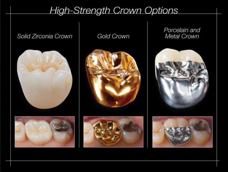 Một mão răng hoàn toàn bằng kim loại là những loại mão chắc chắn nhất hiện có. Bất kể kim loại nào được sử dụng để chế tạo chúng. Vì chúng có thể được sản xuất thành một lớp rất mỏng mà không làm mất đi đặc tính cứng rắn.
