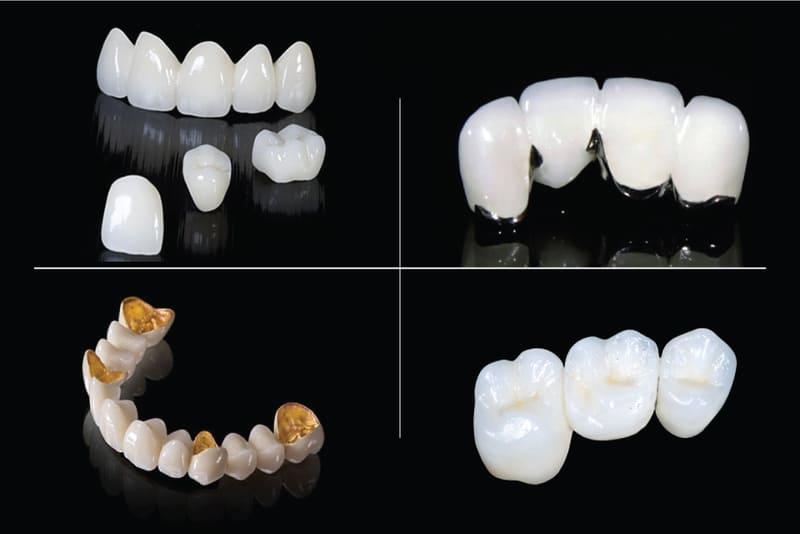 Bọc răng là một phương pháp phục hình răng trong nha khoa được sử dụng rất rộng rãi. Tùy theo từng nhu cầu của bệnh nhân, các loại mão răng cũng rất đa dạng với nhiều vật liệu và giá thành khác nhau. Hãy cùng tìm hiểu về 4 loại bọc mão răngphổ biến và được ưa chuộng nhất hiện nay nhé!