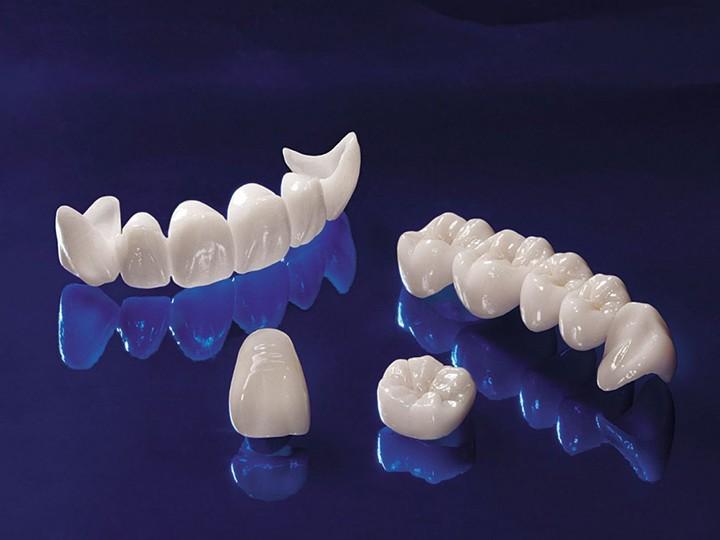 Sứ Feldspathic là vật liệu sứ truyền thống, tiêu chuẩn. Đã được sử dụng để tạo mão răng trong nhiều năm. Nó là một vật liệu cung cấp một diện mạo rất tự nhiên như răng thật. Những mão này được tạo ra bằng cách tùy chỉnh lớp sứ. Và có thể được gắn trực tiếp vào bề mặt răng tự nhiên